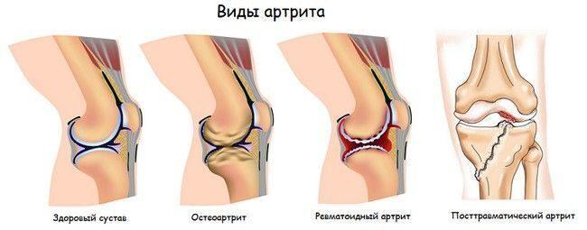 dureri articulare cauze spirituale artroza piciorului metatarsian